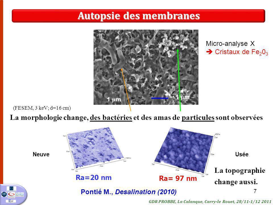 Autopsie des membranes