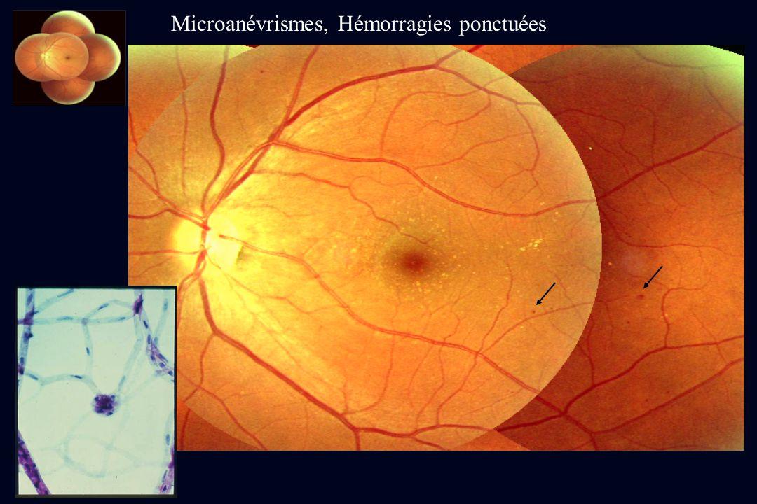 Microanévrismes, Hémorragies ponctuées