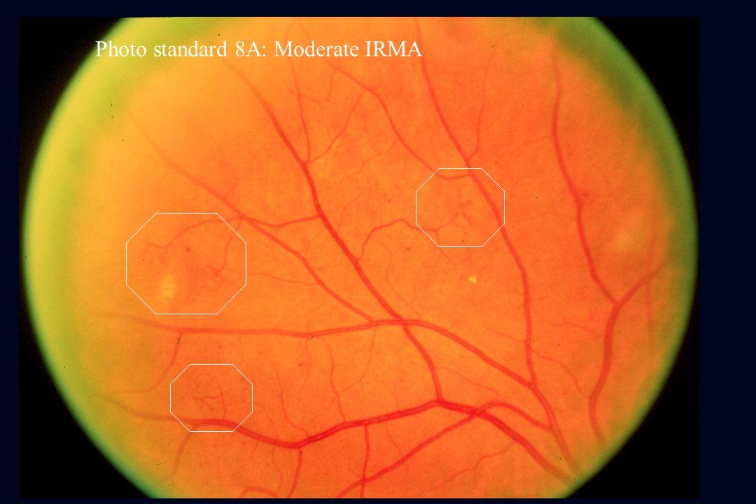 Photo standard 8A: Moderate IRMA
