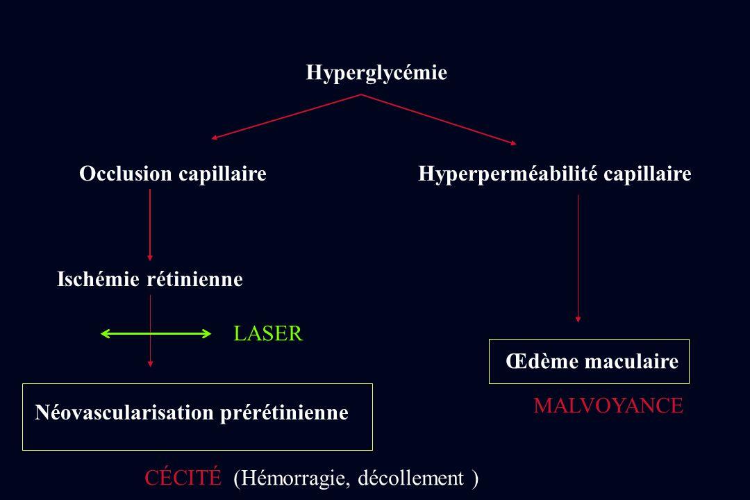 Hyperglycémie Occlusion capillaire. Hyperperméabilité capillaire. Ischémie rétinienne. LASER. Œdème maculaire.
