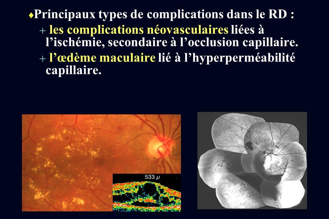 Principaux types de complications dans le RD :