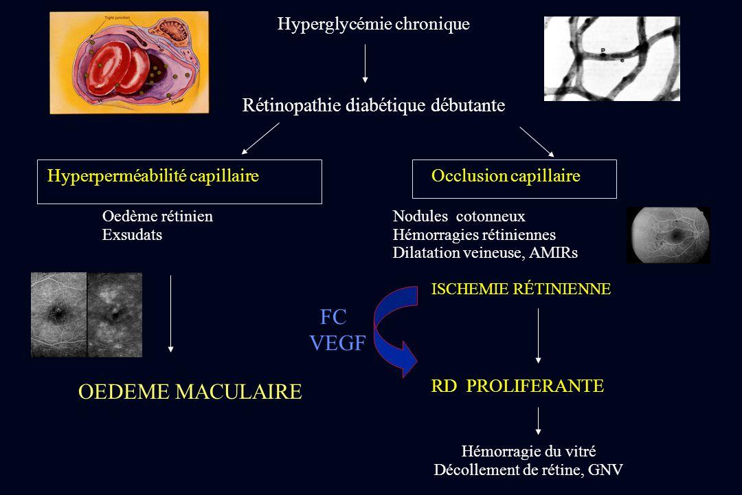FC VEGF OEDEME MACULAIRE Rétinopathie diabétique débutante