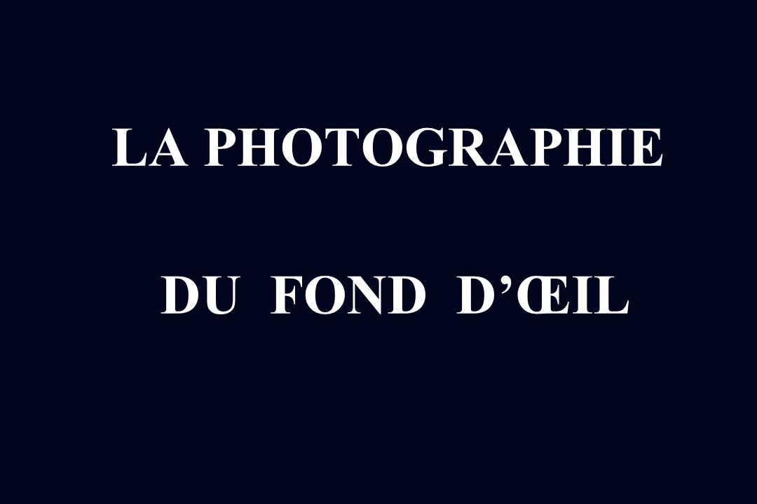 LA PHOTOGRAPHIE DU FOND D'ŒIL