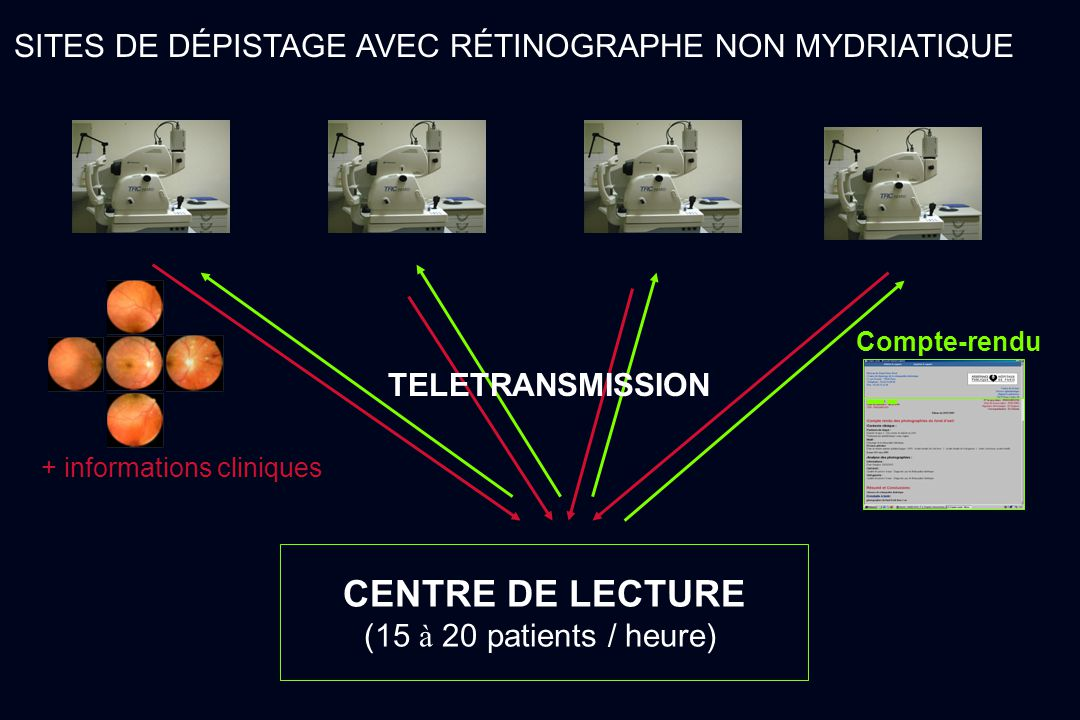 CENTRE DE LECTURE SITES DE DÉPISTAGE AVEC RÉTINOGRAPHE NON MYDRIATIQUE