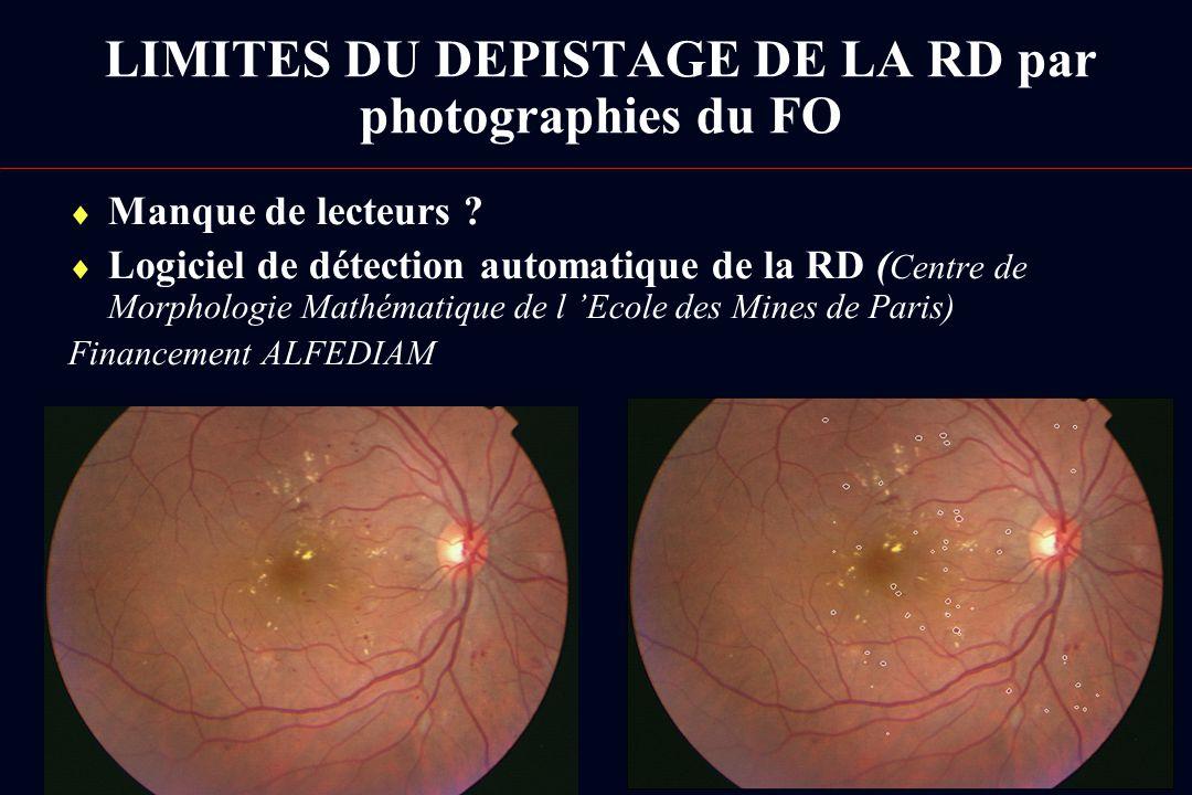 LIMITES DU DEPISTAGE DE LA RD par photographies du FO