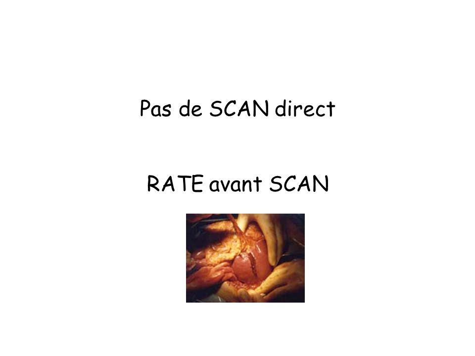 Pas de SCAN direct RATE avant SCAN