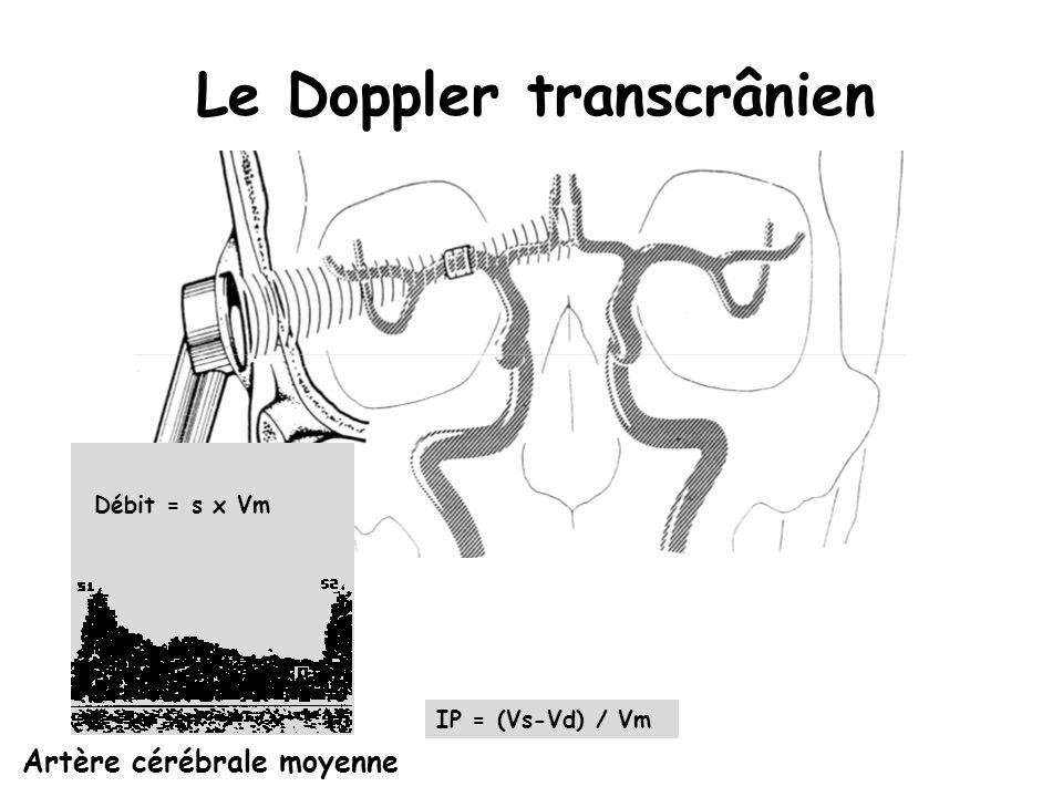 Le Doppler transcrânien