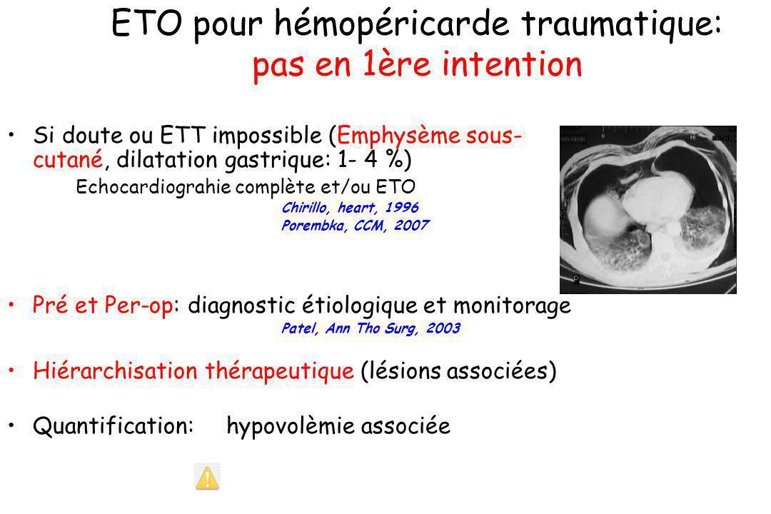 ETO pour hémopéricarde traumatique: pas en 1ère intention