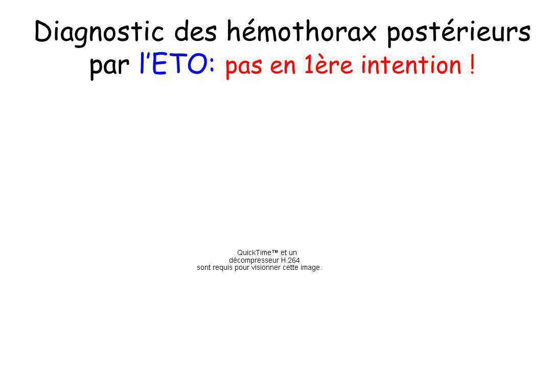 Diagnostic des hémothorax postérieurs par l'ETO: pas en 1ère intention !