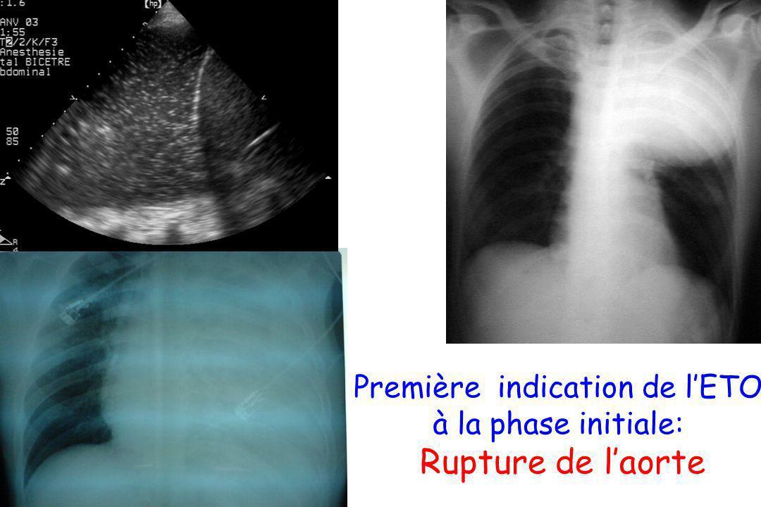 Première indication de l'ETO à la phase initiale: Rupture de l'aorte