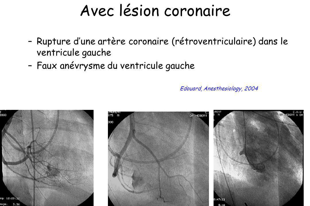 Avec lésion coronaire Rupture d'une artère coronaire (rétroventriculaire) dans le ventricule gauche.