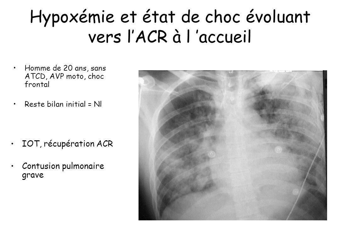 Hypoxémie et état de choc évoluant vers l'ACR à l 'accueil