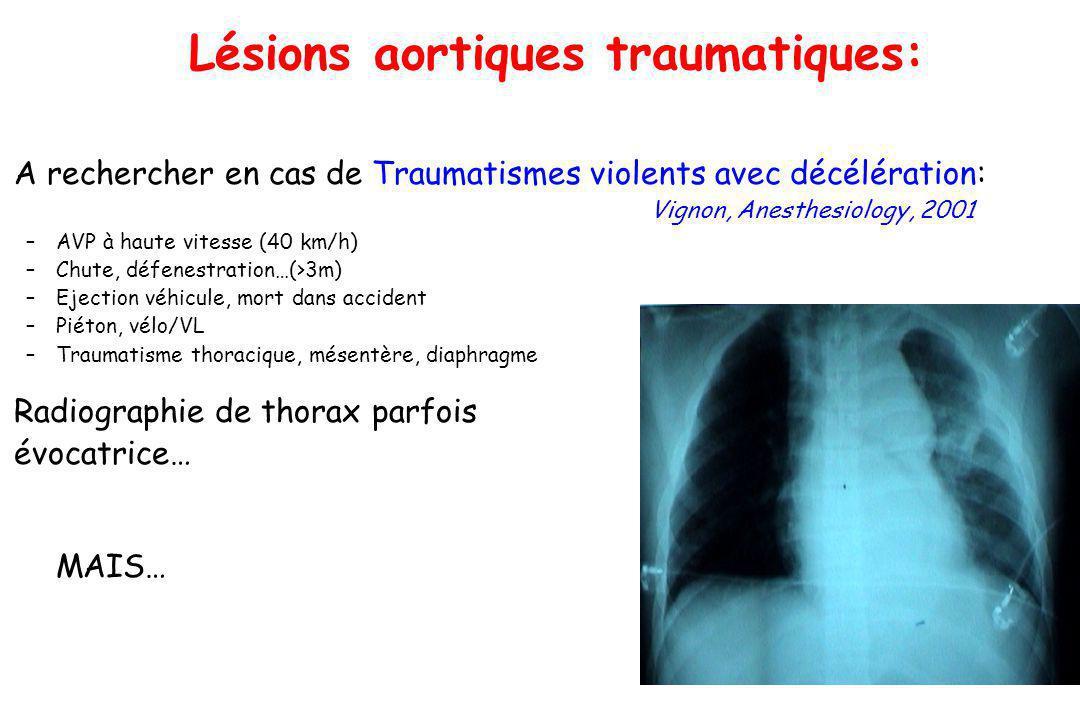 Lésions aortiques traumatiques: