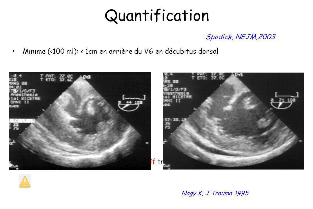 Quantification Spodick, NEJM,2003
