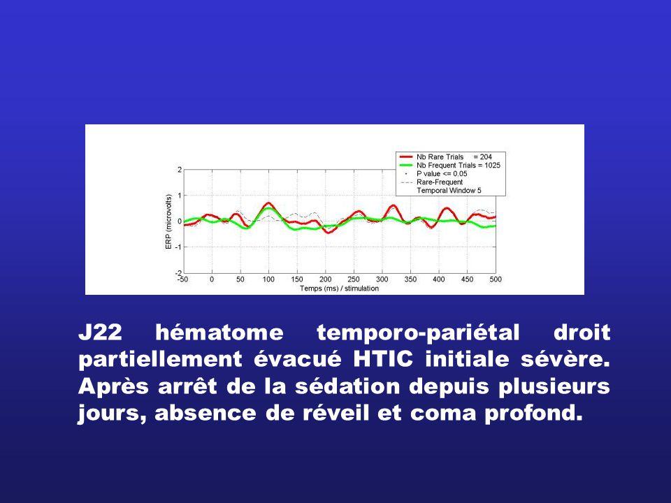 J22 hématome temporo-pariétal droit partiellement évacué HTIC initiale sévère.