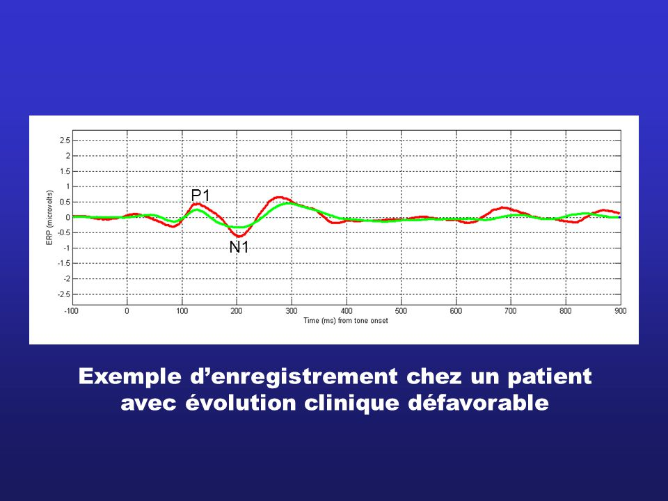 Exemple d'enregistrement chez un patient