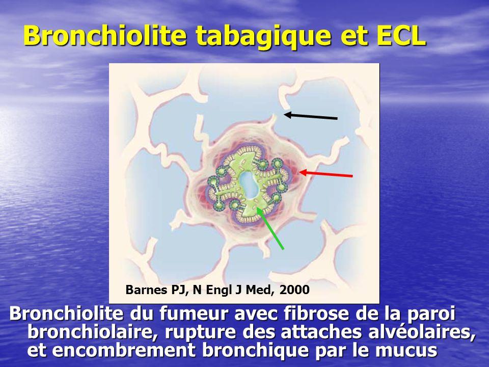 Bronchiolite tabagique et ECL