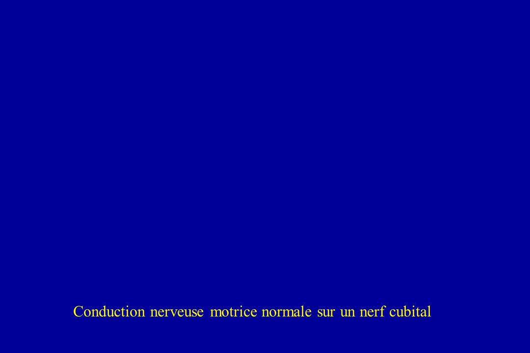 Conduction nerveuse motrice normale sur un nerf cubital