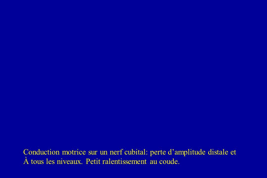 Conduction motrice sur un nerf cubital: perte d'amplitude distale et