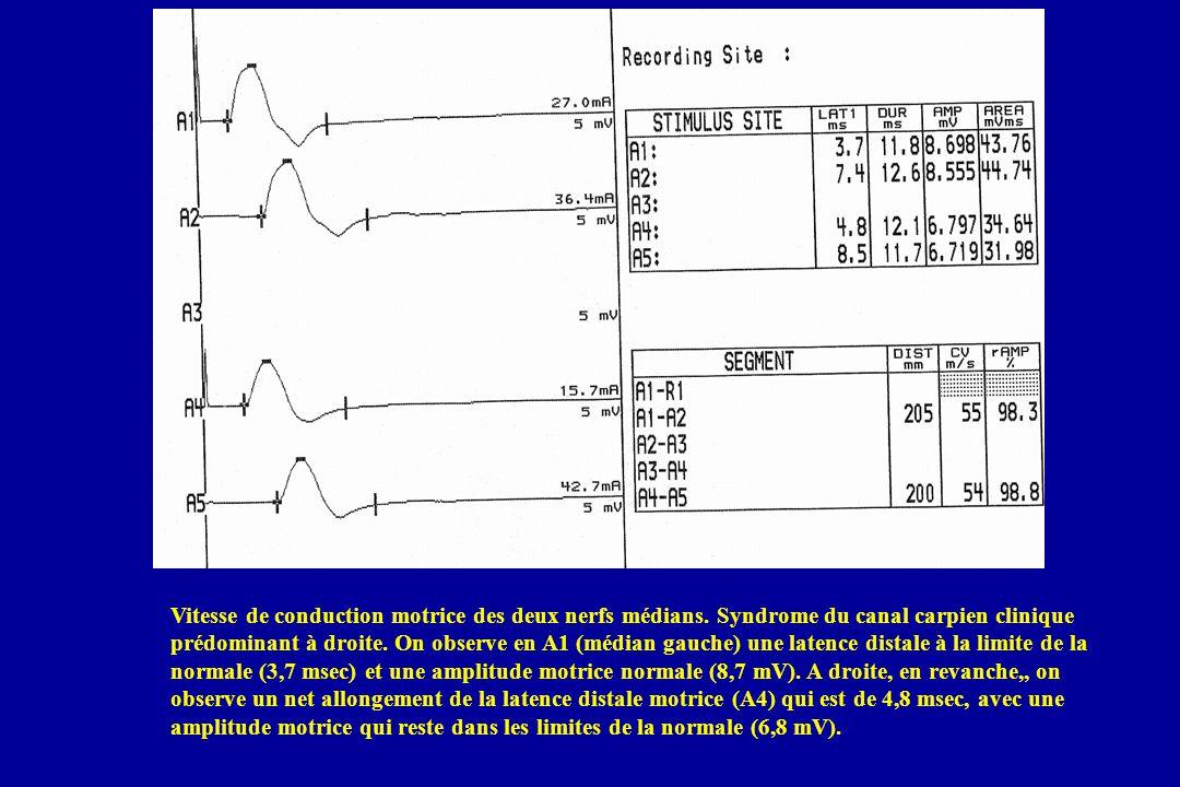 Vitesse de conduction motrice des deux nerfs médians