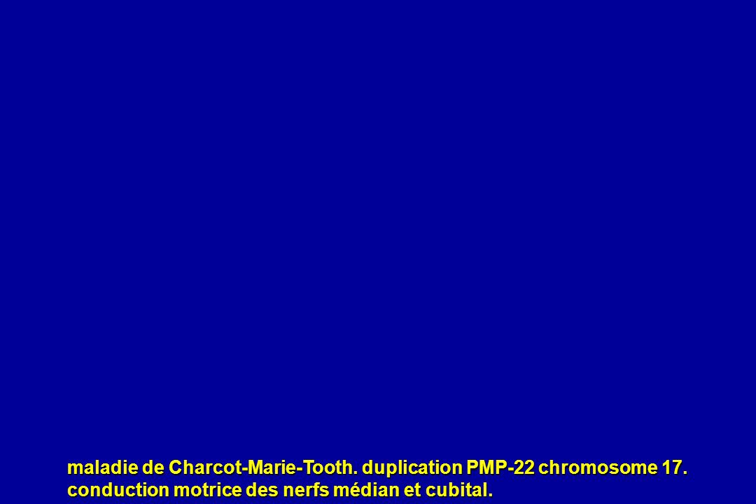 maladie de Charcot-Marie-Tooth. duplication PMP-22 chromosome 17.