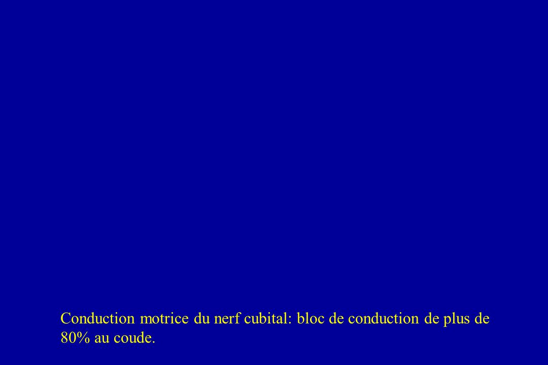 Conduction motrice du nerf cubital: bloc de conduction de plus de