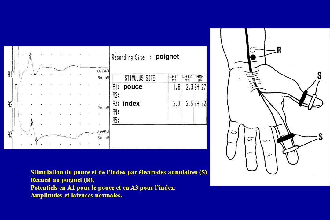Stimulation du pouce et de l'index par électrodes annulaires (S)