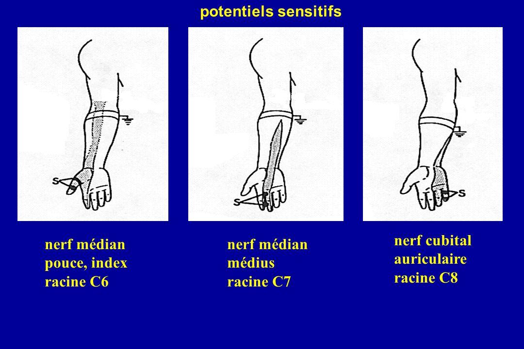 potentiels sensitifs nerf cubital. auriculaire. racine C8. nerf médian. pouce, index. racine C6.