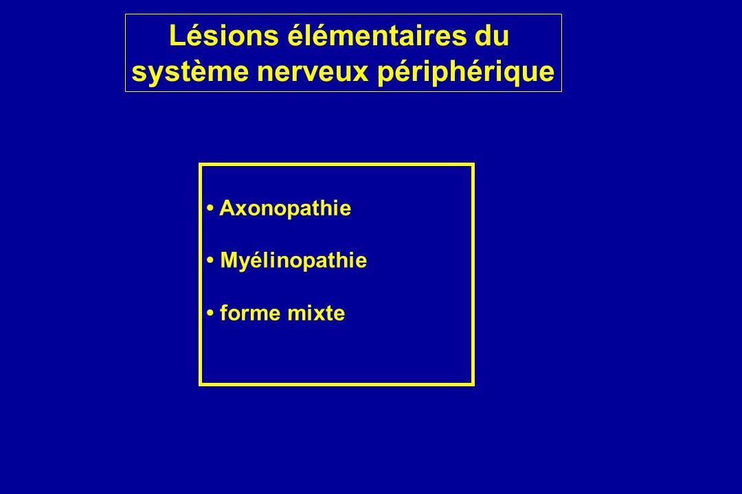 Lésions élémentaires du système nerveux périphérique