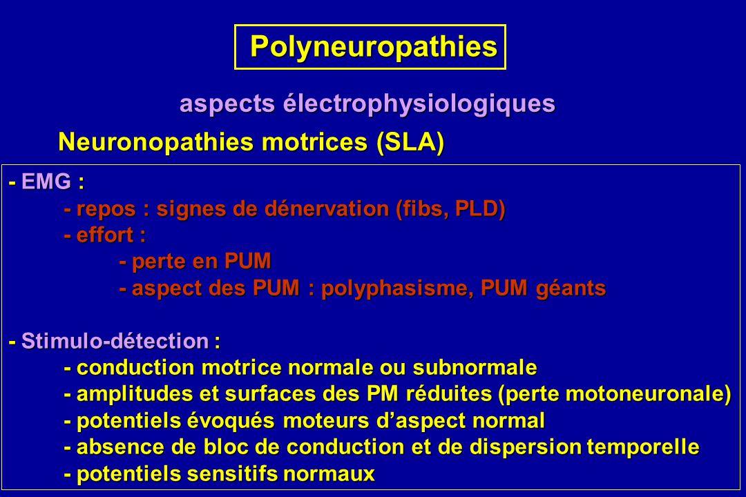 Polyneuropathies aspects électrophysiologiques