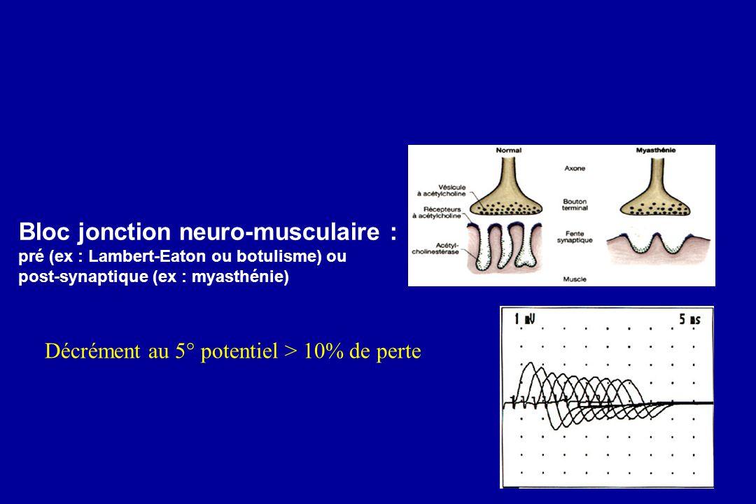 Bloc jonction neuro-musculaire :