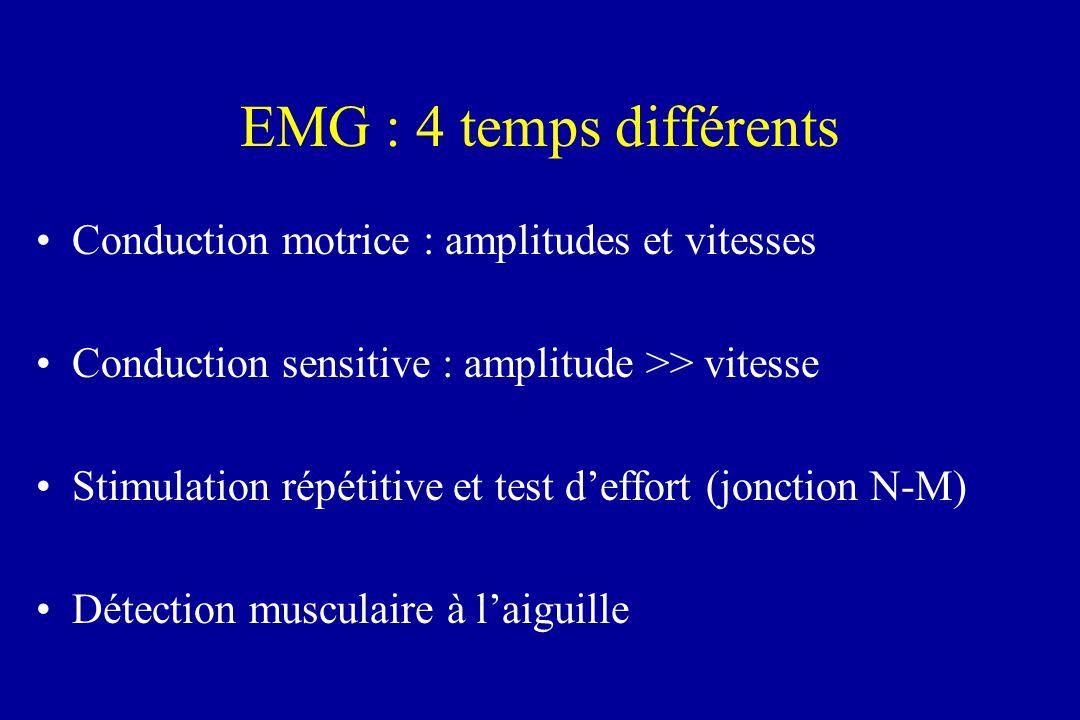 EMG : 4 temps différents Conduction motrice : amplitudes et vitesses