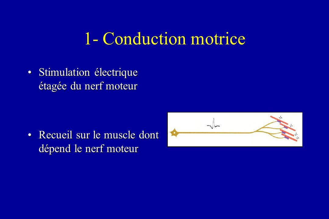 1- Conduction motrice Stimulation électrique étagée du nerf moteur