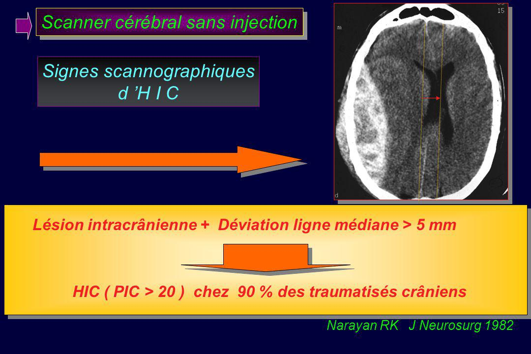 Scanner cérébral sans injection