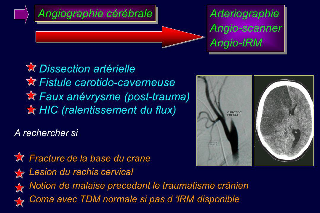 Angiographie cérébrale