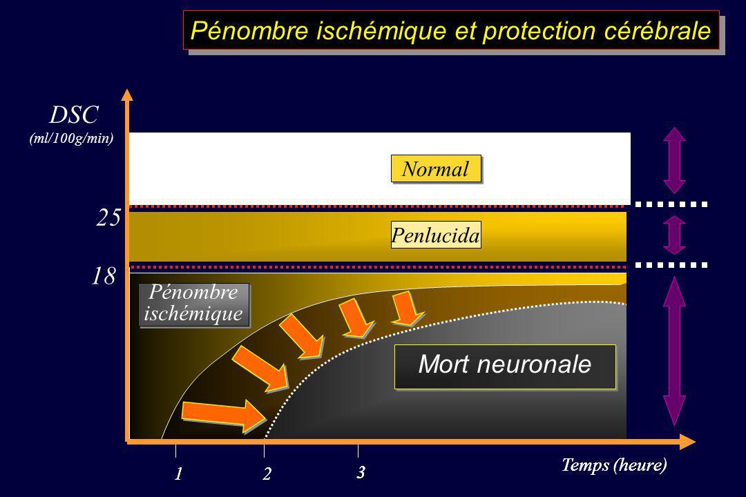 Pénombre ischémique et protection cérébrale