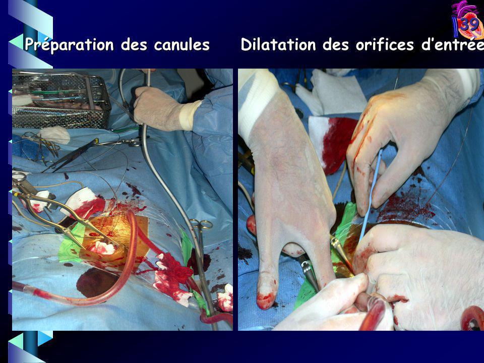 Dilatation des orifices d'entrée