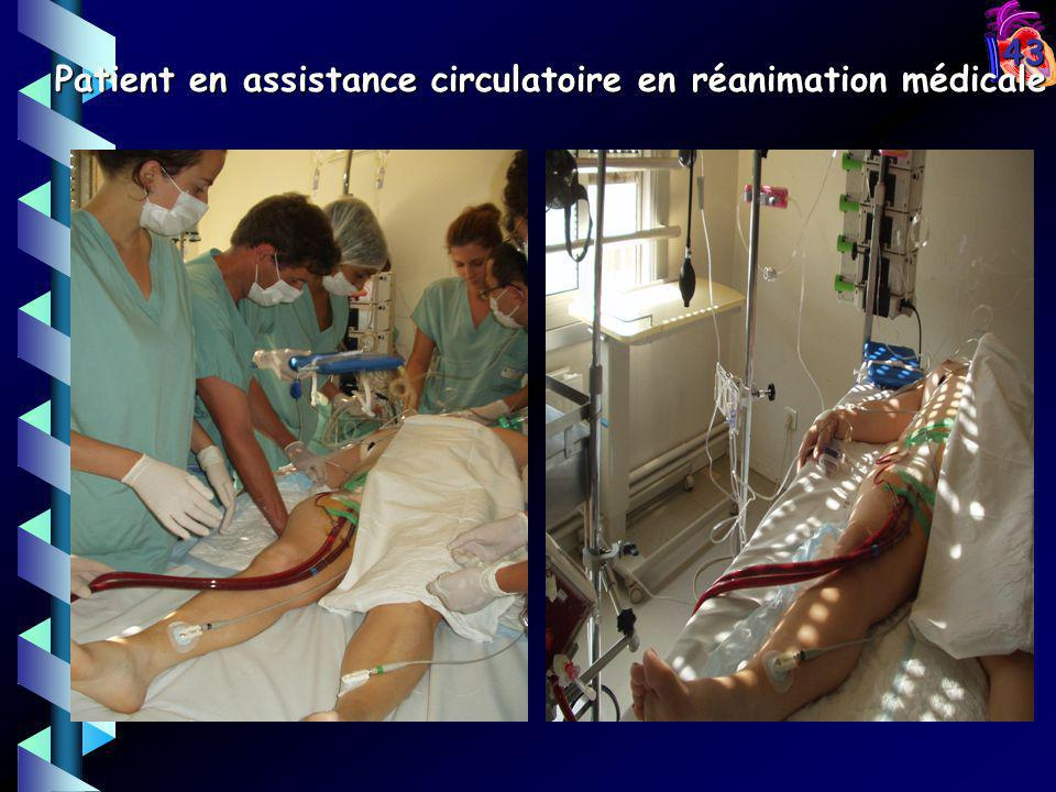 Patient en assistance circulatoire en réanimation médicale