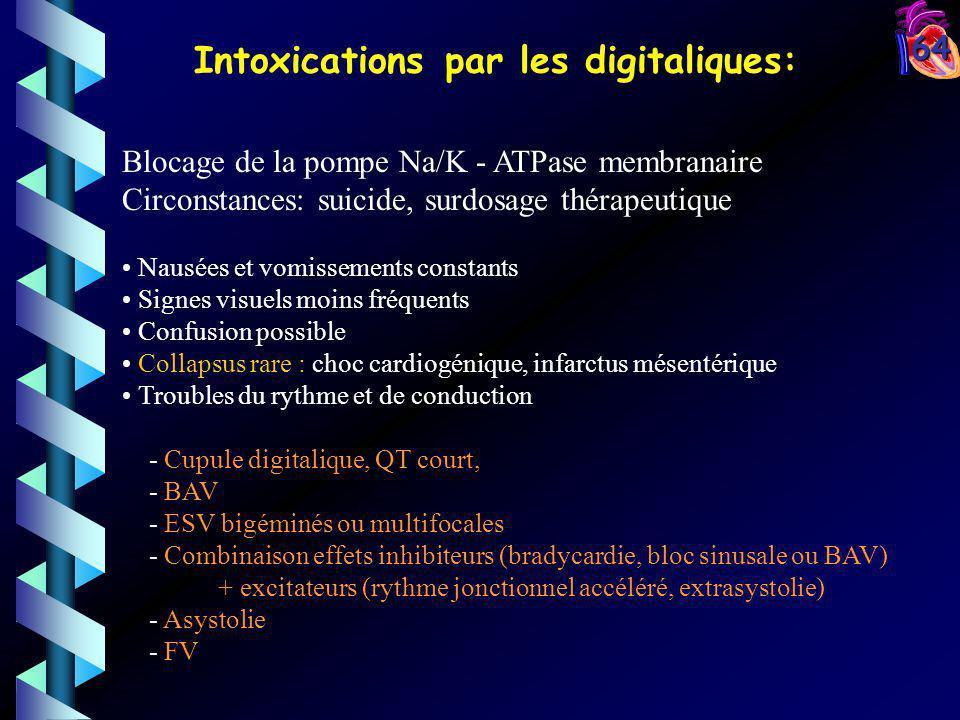 Intoxications par les digitaliques: