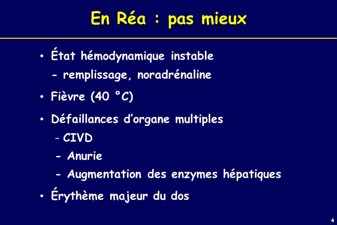 En Réa : pas mieux État hémodynamique instable