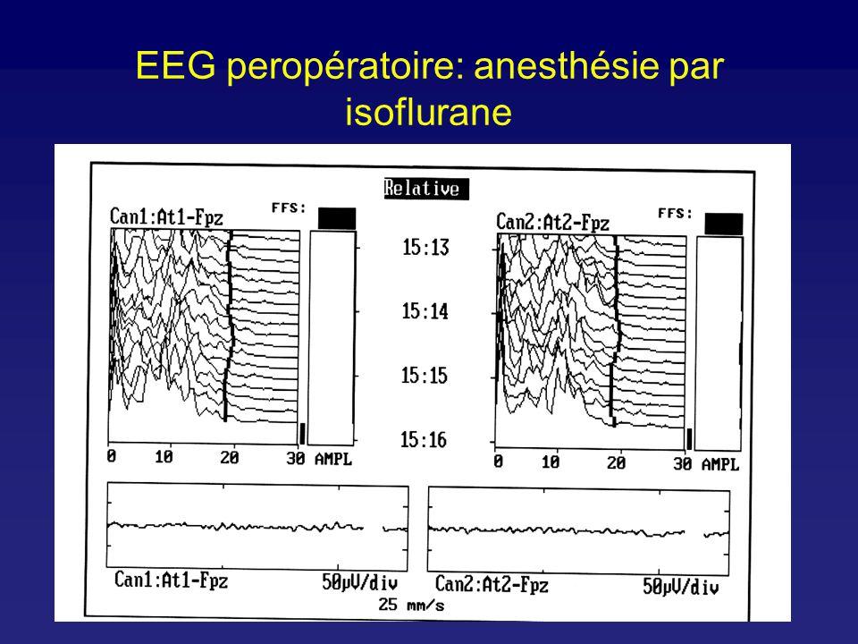 EEG peropératoire: anesthésie par isoflurane
