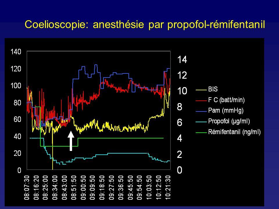 Coelioscopie: anesthésie par propofol-rémifentanil