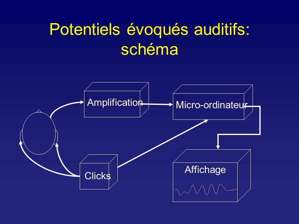 Potentiels évoqués auditifs: schéma