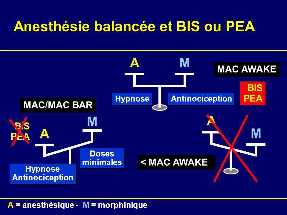 Anesthésie balancée et BIS ou PEA