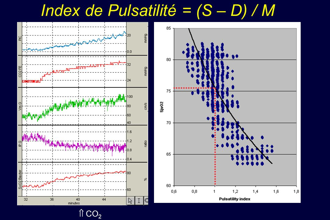 Index de Pulsatilité = (S – D) / M
