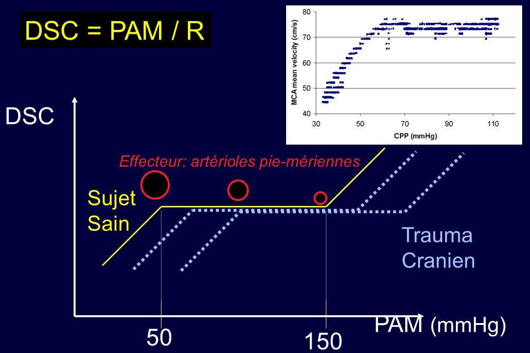 DSC = PAM / R DSC PAM (mmHg) 50 150 Sujet Sain Trauma Cranien