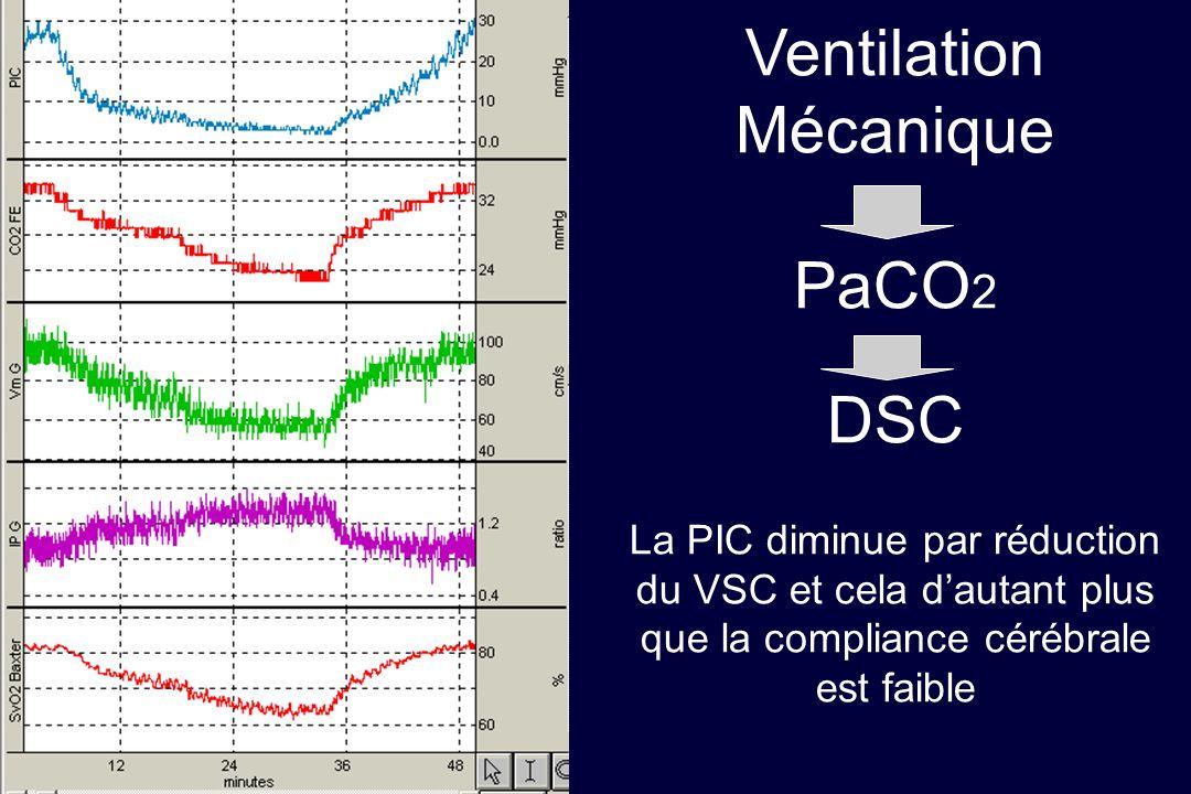 Ventilation Mécanique PaCO2 DSC La PIC diminue par réduction du VSC et cela d'autant plus que la compliance cérébrale est faible