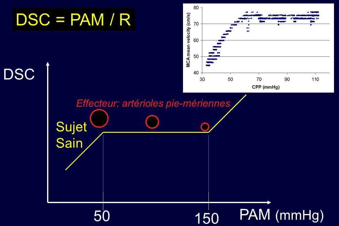DSC = PAM / R DSC PAM (mmHg) 50 150 Sujet Sain