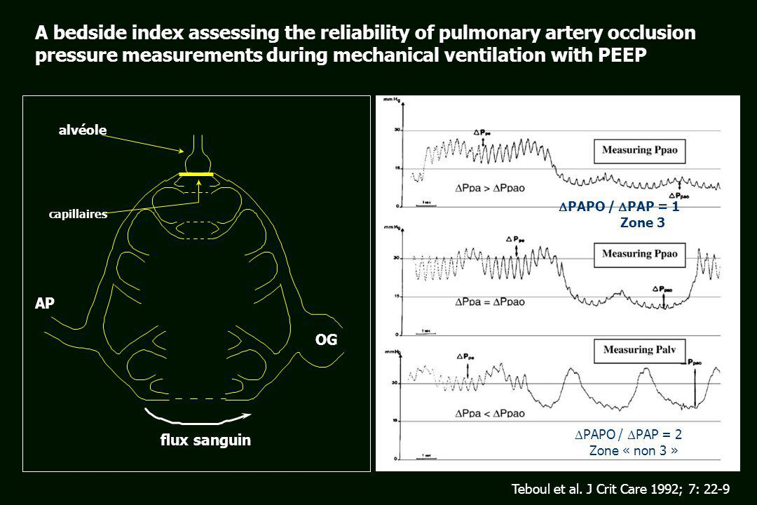 A bedside index assessing the reliability of pulmonary artery occlusion pressure measurements during mechanical ventilation with PEEP