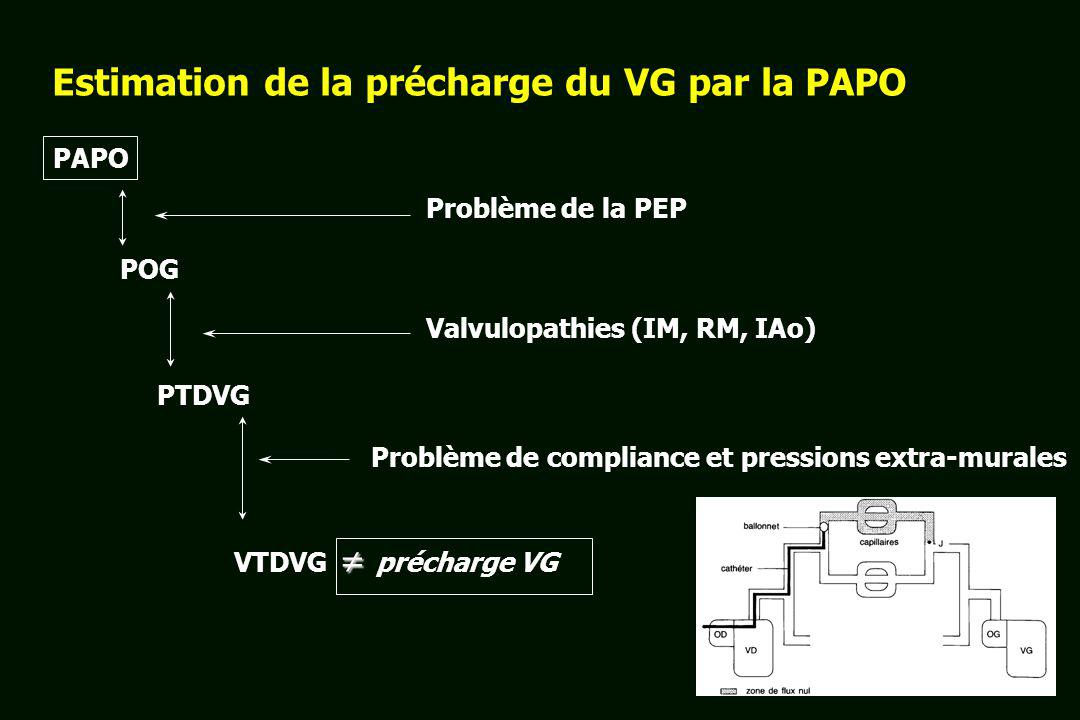 Estimation de la précharge du VG par la PAPO